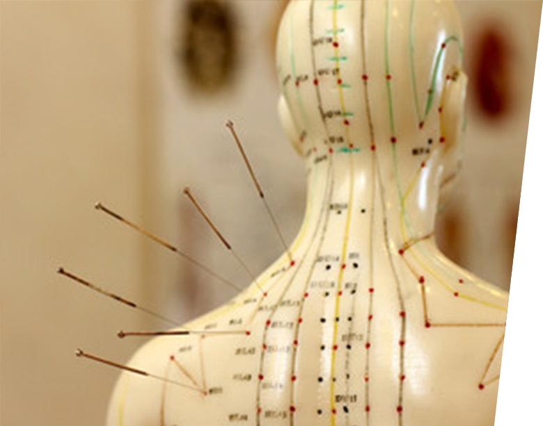acupuntura01